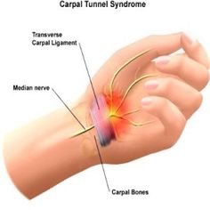 Carpal Tunnel syndrome is often caused by tension from computer mouse use. The Handshoe Mouse keeps your hand relaxed to prevent this and alleviate your Carpal Tunnel or RSI