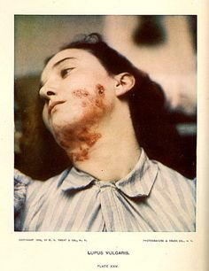 http://www.artandmedicine.com/biblio/images/gottheil/Lupus.jpg