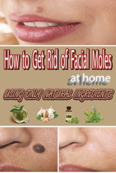 Home Remedy To Eliminate Facial Moles
