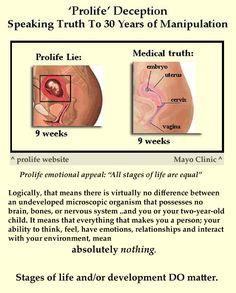 Pro-life misrepresentation of stages of fetal development