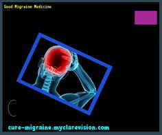 Good Migraine Medicine 171823 - Cure Migraine