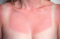 5 home remedies for sunburn you'll want to keep in mind this summer.