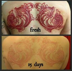 STUNNING healed scarification performed by Richard Ivey // instagram: @richardeffinivey and the art is on @emballistic // #bodymodification #scarification #skinpeel