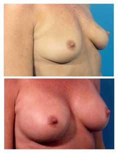What does girls breasts look like — pic 7