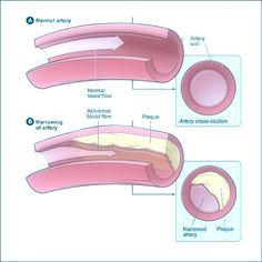 What Is #CoronaryHeartDisease(CHD)?Coronary Heart Disease is due to a waxy substance referred to as plaque (plak) builds up within the coronary arteries.For more details Visit here : http://goo.gl/U498I9