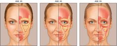 Fat   A youthful look depends on having the right amount of facial fat in the right places. Redistribution, accumulation, and atrophy of fat lead to facial volume loss  Some areas lose fat. Examples are the forehead and cheeks.  Other areas gain fat. Examples are the mouth and jaw   Modification of the fat pads leads to contour deficiencies    In addition, the areas of the fat tend to become farther apart. Instead of a smooth, almost continuous layer, the fat pads appear as separate…