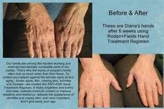 Do your Hands show your age? Rodan + Fields has the solution... Anti Age Hand Regimen ... It comes with a money back guarantee! Www.cathywerder.com