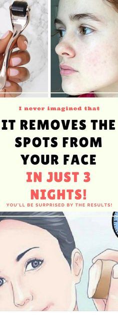 It Will Remove The Spots From Your Face In Just 3 Nightsss.!