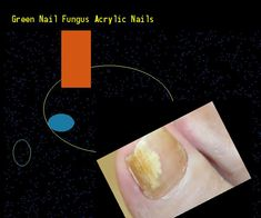 Green nail fungus acrylic nails - Nail Fungus Remedy. You have nothing to lose! Visit Site Now