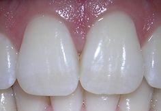 Dentálna hygiena v Bratislava na Tehelnej http://dentalplus.sk/sluzby/dentalna-hygiena-bratislava
