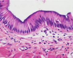 Simple Columnar Epithelium; single layer of cells cells are roughly rectangular-shaped in section nuclei are usually oval and basal (locate at base of cell) goblet cells are scattered amid the columnar cells (goblet cells secrete mucus)