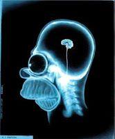 Reorganización neurológica y neuroplasticidad http://davidaso.fisioterapiasinred.com/2012/05/reorganizacion-neurologica-y-neuroplasticidad.html