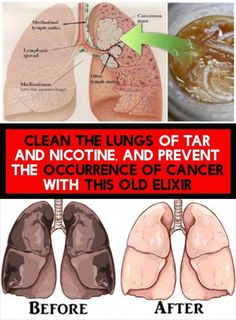 Clean The Lungs Of Tar And Nicotine, And Prevent The Occurrence Of Cancer With This Old Elixir Keeping Healthy, Get Healthy, Healthy Habits, Clean Lungs, Ways To Be Healthier, First Health, Health Tips For Women, Live Happy, Healthy Lifestyle Tips