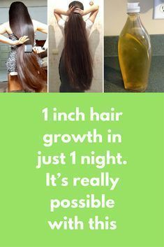 1 inch hair growth in just 1 night. It's really possible with this Today I will share overnight hair growth mask that will not make your hair longer but will also make them silkier and stronger For this remedy you will need Aloe vera gel Coconut oil Casto Hair Mask For Growth, Vitamins For Hair Growth, Hair Remedies For Growth, Hair Growth Treatment, Hair Vitamins, Hair Loss Remedies, Hair Growth Tips, Coconut Oil Hair Treatment, Coconut Oil Hair Growth