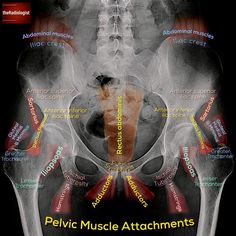 Take a look at this annotated X-Ray, which exhibits you the place a number of the pelvic muscular tissues… – free medical books Muscle Anatomy, Body Anatomy, Radiology Student, Human Anatomy And Physiology, Medical Anatomy, Nursing Notes, Medical Information, Massage Therapy, Physical Therapy