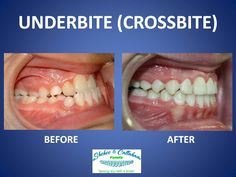 Braces before and after - underbite/crossbite