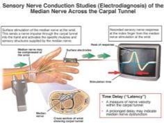 Diagnosing Ulnar Nerve Compression   NYU Langone Health