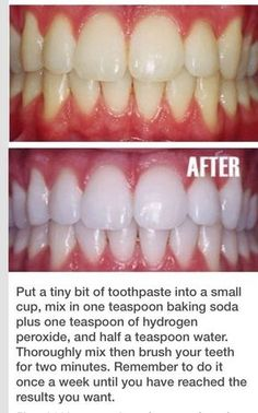 Teeth Whitening Remedies, Natural Teeth Whitening, Whitening Kit, Instant Teeth Whitening, Fast Teeth Whitening, Teeth Whitening That Works, Beauty Care, Beauty Skin, Natural Beauty Tips