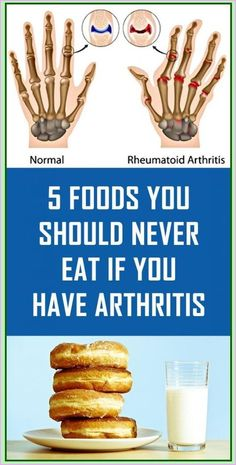 5 Foods You Should Never Eat If You Have Arthritis Herbal Remedies, Health Remedies, Natural Remedies, Herbal Cure, Holistic Remedies, Arthritis Diet, Rheumatoid Arthritis, Arthritis Exercises, Arthritis Remedies