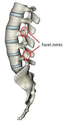 A locked facet joint can be easily detected on physical examination