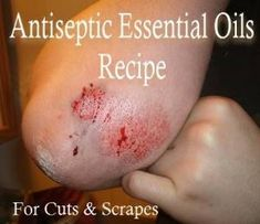 Antiseptic Essential Oil Recipe For Cuts and Scrapes by blanca