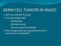 Αποτέλεσμα εικόνας για germ cell tumor