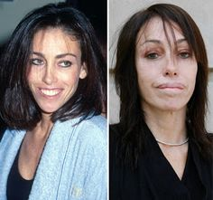 Chatter Busy: Heidi Fleiss Plastic Surgery