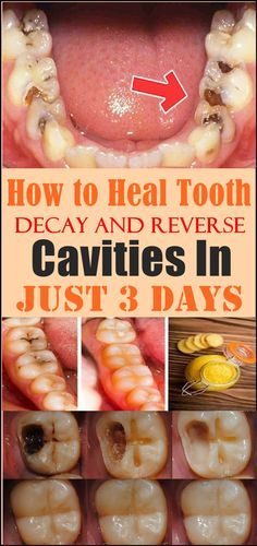 How to Heal Tooth Decay and Reverse Cavities In Just 3 Days Wide-eyed Dental Care Tips Ideas Reverse Cavities, Cooking With Turmeric, Remedies For Tooth Ache, Receding Gums, Teeth Care, Oral Hygiene, Oral Health, Teeth Health, Healthy Teeth