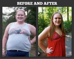 Before and after Gastric Bypass. The after picture is 7 months and 110 lbs after Gastric Bypass