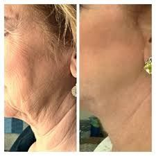 Real results!  Nerium AD.  Also known as miracle cream!