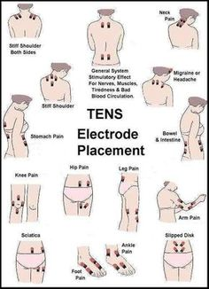 Remedies Arthritis TENS Electrode Placement - TENS units are a great non-invasive pain management alternative to oral medication. Read more for our TENs Electrode placement guide Tens Electrode Placement, Tens Unit Placement, Leg Pain, Ankle Pain, Massage Therapy, Cupping Therapy, Massage Tips, Massage Techniques, Chronic Pain