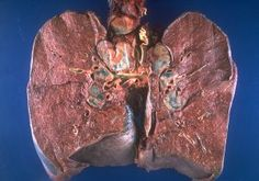 The lambda sign is seen on scans in the setting of thoracic sarcoidosis. Bilateral hilar and right paratracheal lymph nodes are typically involved which can resemble the Greek letter lambda (λ). Erythema Nodosum, Pet Ct, Pleural Effusion, Pulmonary Fibrosis, Lymph Nodes, Medical Imaging, Fungal Infection, Atypical