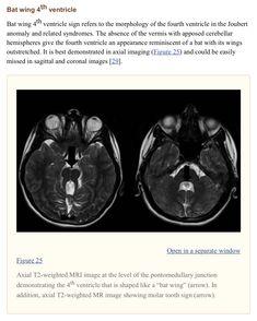 Pediatric Radiology, Bat Wings, Pediatrics