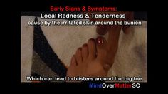 Non Surgery Bunion Treatment to Prevent Bunion Surgery 1/3. Mr Sanchez has made 3 excellent videos here. Great foot exercises!