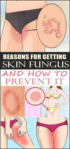 Reasons for getting skin fungus and how to prevent it we've all encountered skin fungus at some point in our lives, which is inevitable as fungi live almost everywhere. We have fungi that live norm… Natural Beauty Tips, Diy Beauty, Beauty Games, Belleza Natural, Face Care, Health Remedies, Fungi, Skin Care Tips, Delena