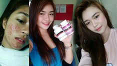 """Luxxe White is consistently hailed as the Most Effective Whitening Supplement for several years. Recently as the Most Powerful Whitening well as """"Best Quality Skin Whitening Supplement. Polycystic Ovary Syndrome Pcos, Liver Detoxification, Whitening Soap, Natural Acne Treatment, Body Organs, Uneven Skin Tone, Anti Aging, Benefit, Bipolar Help"""