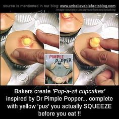 Bakers create 'Pop-a-zit cupcakes' inspired by Dr... - http://didyouknow.abafu.net/facts/bakers-create-pop-a-zit-cupcakes-inspired-by-dr