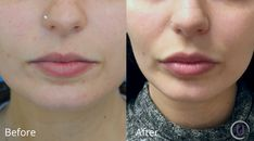 Before and after for lip augmentation with Restylane Silk, one week after injections.