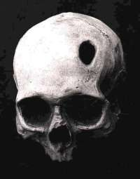 Trepanation, the cutting of a permanent opening in the skull, is one of the oldest known surgical procedures.Beginning in the 1960s, a small group of proponents began to revive trepanation in Europe. They claim the operation improves mental function by increasing bloodflow to the brain. Their theory is that more blood enters the skull with each beat because the brain is able to expand in size.