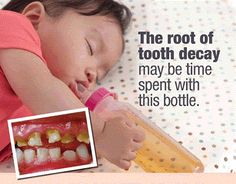 The Root of Tooth Decay