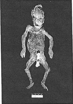 Laci Peterson Autopsy - Bing Images