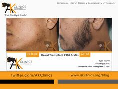 Beard Transplant Surgery Before and After – 2300 Grafts by Dr Kapil Dua - Hair Loss Beard Transplant, Hair Transplant In India, Hair Transplant Women, Losing Hair Women, High Testosterone, Dramatic Hair, Hair Loss Remedies, Prevent Hair Loss, Hair Restoration