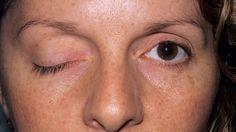 Při akutní mozkové mrtvici může nemocný vidět jen na jedno oko.