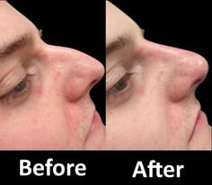 If you'd like to improve the shape of your nose, then opting for 15 Minute Nose Job is a wise decision. Accomplishing this adds them more belief in oneself. Grabbing this chance to have a non-surgical nose job that is beneficial is an excellent choice. It is best than encountering a surgical nose job.