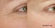Creative and Modern Ideas: Anti Aging Crows Feet skin care masks recipes.Anti Aging For Men Dr. Oz anti aging for men dr. Under Eye Wrinkles, Prevent Wrinkles, Face Wrinkles, Anti Aging Tips, Anti Aging Skin Care, Beauty Care, Beauty Hacks, Beauty Tips, Beauty Products