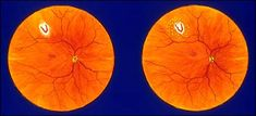 Conditions : Vitreous Detachment And Floaters | Eye Care Office of Ofner, Neale & Fleming