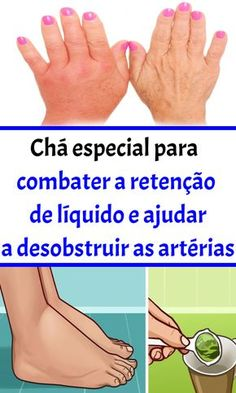 cartilagine ginocchio consuma la cura para la diabetes