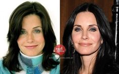 Courteney Cox before and after botox