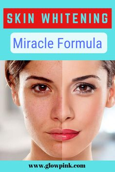 Skin Whitening Miracle Formula, You Can See Results After First Application Only Fairness Cream, Skin Whitening, Clear Skin, Glowing Skin, Natural Beauty, Hair Beauty, How To Apply, Lol, Lighten Skin