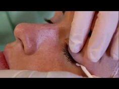 Micropigmentacion de Eyeliner. Técnicas Avanzadas Goldeneye.